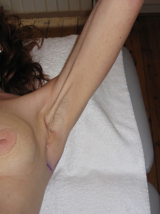 lymph nodes in the axilla--usually after surgery to remove lymph nodes.